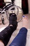 Señora con la pierna fracturada Fotos de archivo libres de regalías