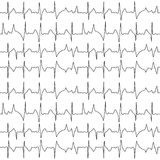 Seamless pattern of the ekg cardiograms chart Royalty Free Stock Images