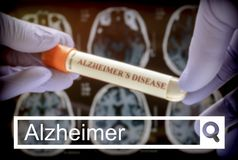 Search in the Alzheimer network, Scientist holds blood sample to investigate remedy against Alzheimer`s disease. Conceptual image stock photos