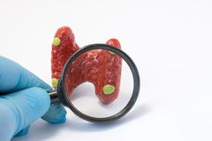 Search disease, abnormalities or pathology of parathyroid glands concept photo. Doctor holding magnifying glass and through it exa. Mines model of parathyroid stock images