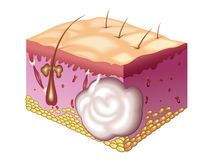 Sebaceous cyst. Medical illustration of the sebaceous cyst Stock Photo