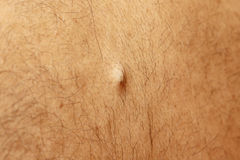 Sebaceous cyst on the back of the male. Sebaceous cyst filled bump on the back of the male royalty free stock photo