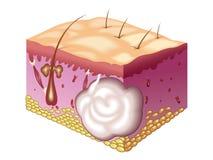 Sebaceous cyste Stock Foto