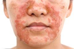 Seborrheic Dermatitis na twarzy zdjęcia stock