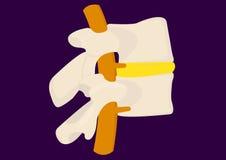 Sección del hueso de la espina dorsal Fotografía de archivo libre de regalías