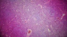 Sección del páncreas debajo del microscopio Imagenes de archivo