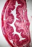 Sección plana estratificada del epitelio debajo del microscopio Fotografía de archivo