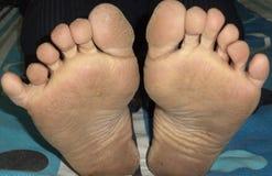 Sechs Finger in beiden Füßen Lizenzfreie Stockfotos