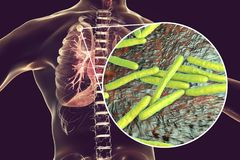 Secondary tuberculosis in lungs and close-up view of Mycobacterium tuberculosis bacteria. 3D illustration royalty free illustration
