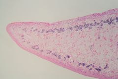 Section of a common liver fluke Fasciola under the microscope. Fasciola is a parasite causes Fasciolosis or liver rot royalty free stock photo