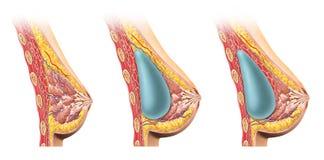 Section transversale d'implant mammaire de femme. Image libre de droits