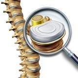 Segmento de la anatomía de la espina dorsal lumbar stock de ilustración