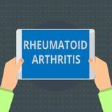 Segno del testo che mostra artrite reumatoide Malattia autoimmune della foto concettuale che può causare i dolori articolari ed i illustrazione vettoriale