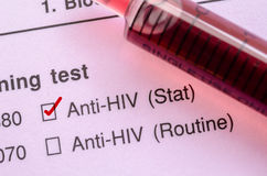 Segno di spunta corretto rosso con il campione di sangue per il test HIV Fotografie Stock Libere da Diritti