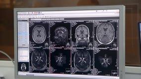 Seguimiento de una exploración del CT con en el fondo oscuro metrajes