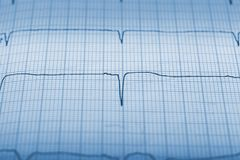 Seismic activity register lines close-up.  Stock Image