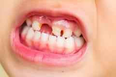 Selective focus broken teeth of asian little girl Royalty Free Stock Photography