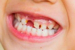 Selective focus broken teeth of asian little girl Royalty Free Stock Photos