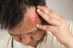 Selective focus  on painful red swollen forehead injury. Selective focus on painful red swollen forehead of man injured from accidental fall Royalty Free Stock Images