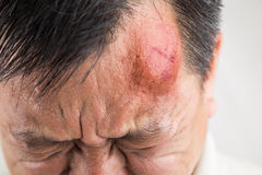 Selective focus on painful red swollen forehead injury. Selective focus on painful red swollen forehead of man injured from accidental fall stock photography