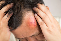 Selective focus on painful red swollen forehead injury. Selective focus on painful red swollen forehead of man injured from accidental fall stock photo