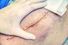Selektiver Fokus des alten menschlichen Beines mit Narbe Patient mit langer Narbe Stockfoto