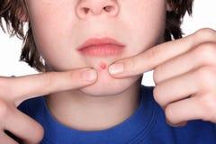 Selezionando ad un Pimple Fotografie Stock Libere da Diritti