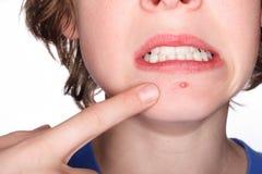 Selezionando ad un Pimple Immagini Stock Libere da Diritti