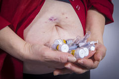 Self Injecting medical therapy Royalty Free Stock Photo