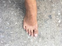 Mark of sunburn on bare foot after takeing shoes off. Royalty Free Stock Image