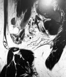 Seltene Eierstock Prüfung mri Pathologie des Teratoms stockbilder