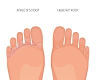 Semelles de pedis de pied ou de tinea d'athlètes des pieds Images stock
