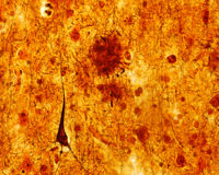 Senile plaque. Alzheimer disease. Light microscope micrograph of a senile plaque stained with a silver impregnation.  A pyramidal neuron with a neurofibrillary Stock Images
