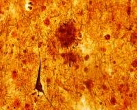 Senile plaque. Alzheimer disease Stock Images