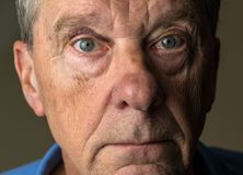 Senior caucasian man with a black eye. Close up of an elderly caucasian man with black eye royalty free stock photo