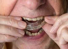 Senior man putting a night guard onto crooked teeth. Senior caucasian man putting plastic mouth or night guard onto crooked stained teeth royalty free stock images