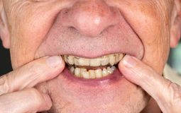 Senior man putting a night guard onto crooked teeth. Senior caucasian man putting plastic mouth or night guard onto crooked stained teeth royalty free stock photography