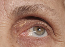 Senior Eye and Wrinkles. Close up photo of a senior female eye. Wrinkles around her eye are visible and there is a lipoma near the eye. She is aged and her skin royalty free stock photography