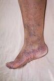 Senior leg problems Royalty Free Stock Photo