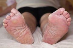 Senior leg problems stock photo