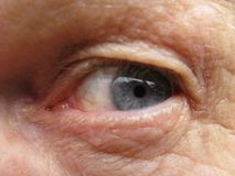 Senior males eye Stock Photography