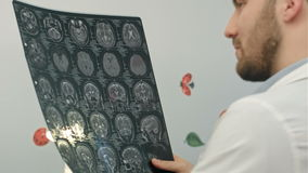 Senior man doctor examines MRI image in hospital stock video footage