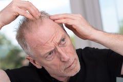 Senior man with hair concern royalty free stock photos