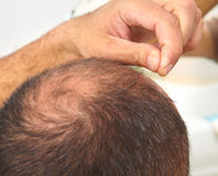 Senior man and hair loss issue Stock Image