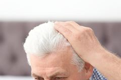Senior man with hair loss problem indoors. Closeup royalty free stock photography