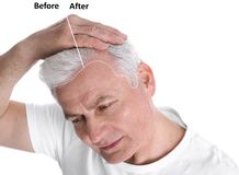 Senior man before and after hair loss treatment royalty free stock image