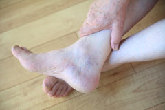Senior man has spider veins on ankle. An older man with prominent veins on his foot Stock Photos