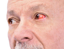 Senior man with irritated red bloodshot eye Royalty Free Stock Photos