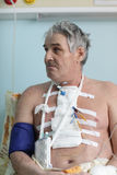 Senior man with pacemaker. After heart surgery in a hospital ward royalty free stock photography