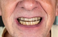 Senior man putting a night guard onto crooked teeth. Senior caucasian man putting plastic mouth or night guard onto crooked stained teeth stock image